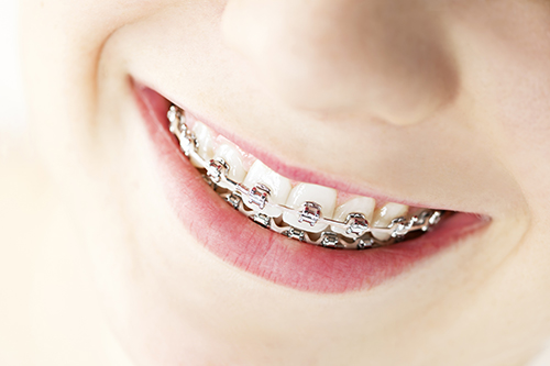 Braces in Center Line